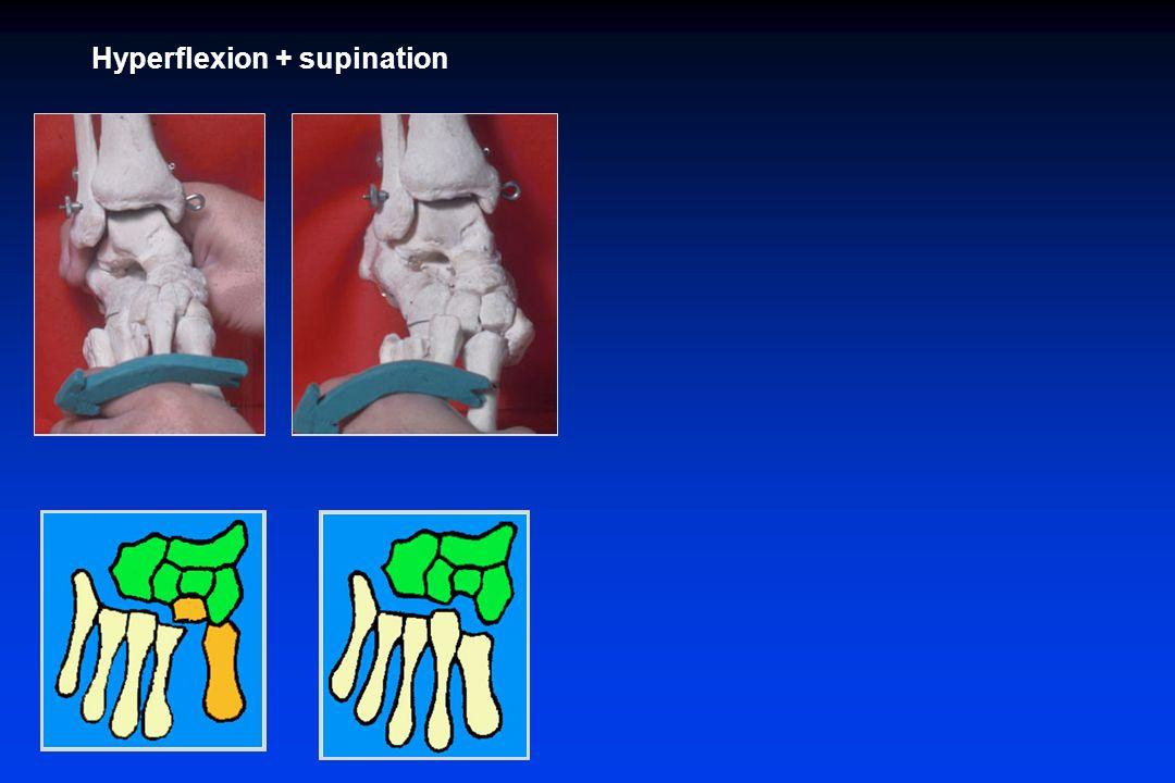 Hyperflexion + supination Hyperflexion + pronation Luxation spatulaire Lux col-spat latérale Luxation de la colonne Luxation divergente