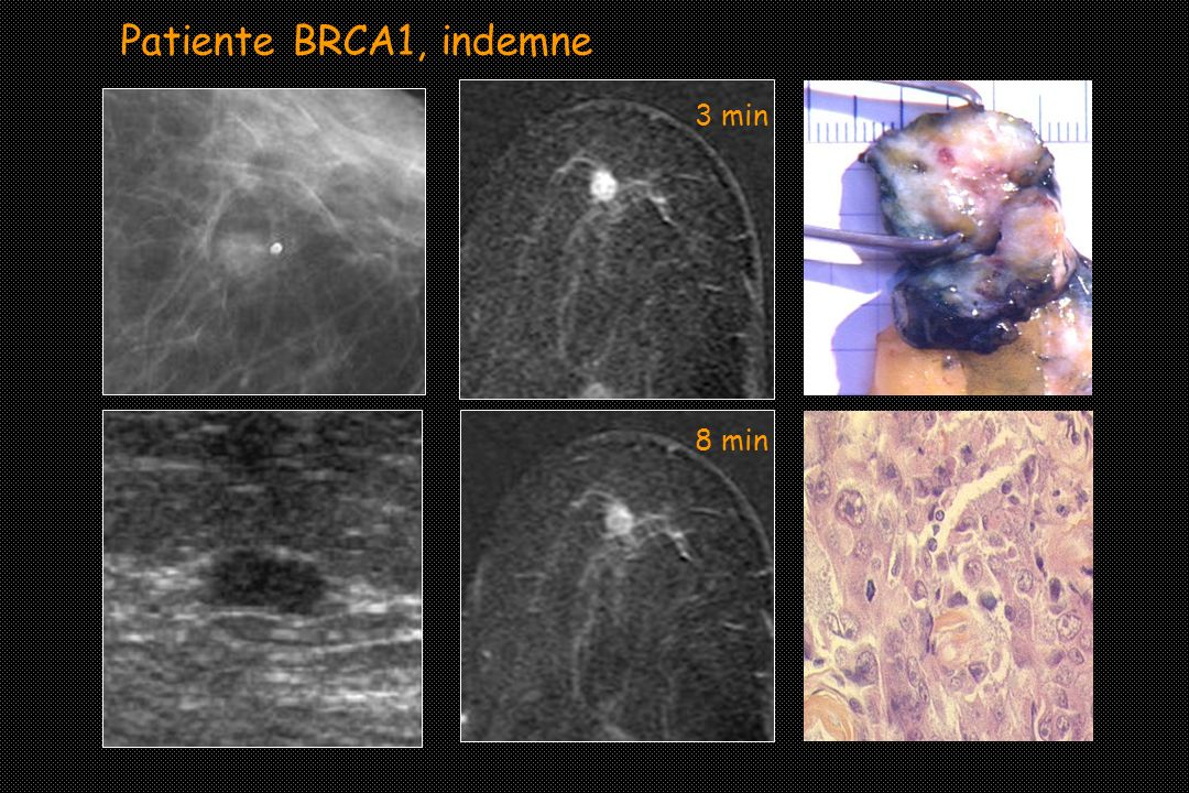 3 min 8 min Patiente BRCA1, indemne