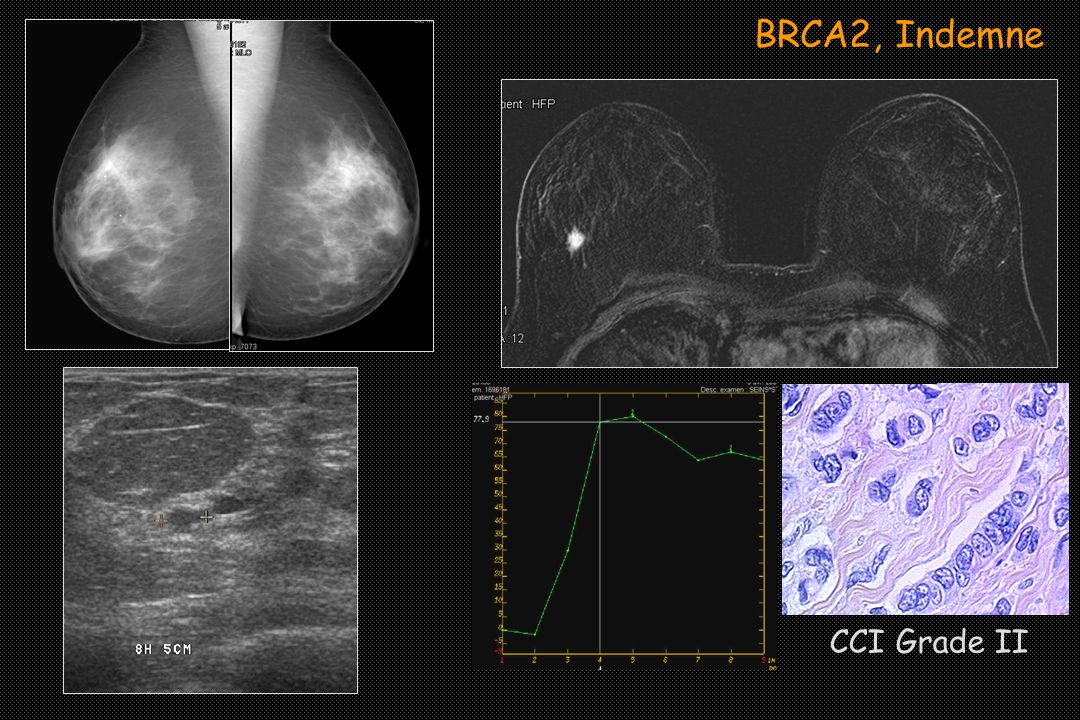 BRCA2, Indemne CCI Grade II