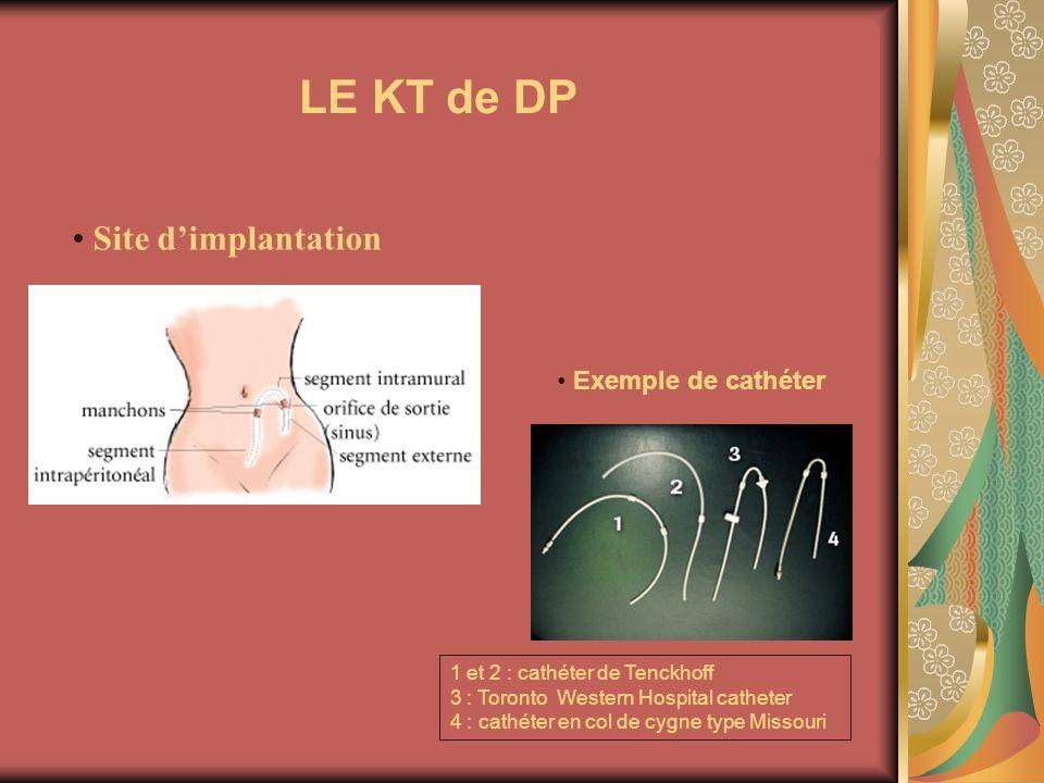 LE KT de DP Site dimplantation Exemple de cathéter 3 1 et 2 : cathéter de Tenckhoff 3 : Toronto Western Hospital catheter 4 : cathéter en col de cygne