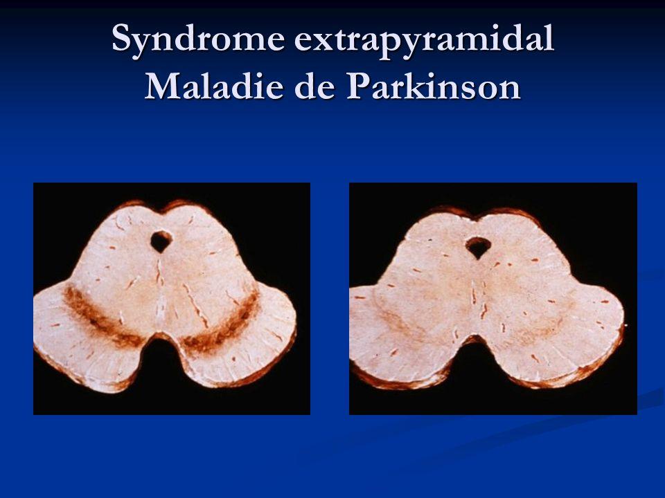 Traitement de maladie de Parkinson Choix du traitement initial Sujet < 70 ans : Agonistes Dopaminergiques Sujet < 70 ans : Agonistes Dopaminergiques Sujet > 70 ans : L-dopa Sujet > 70 ans : L-dopa