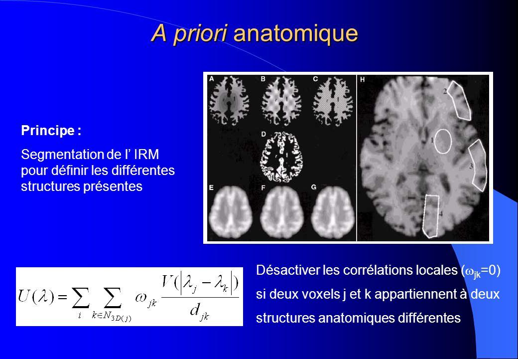 A priori anatomique Désactiver les corrélations locales ( jk =0) si deux voxels j et k appartiennent à deux structures anatomiques différentes Princip