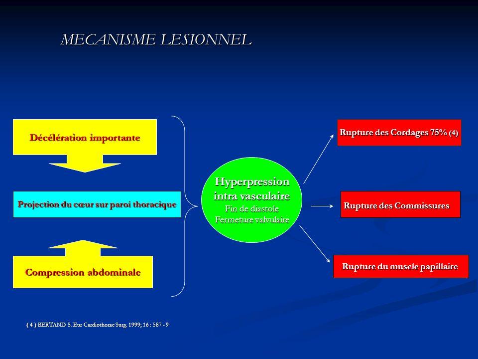 MECANISME LESIONNEL MECANISME LESIONNEL Projection du cœur sur paroi thoracique Rupture des Cordages 75% (4) Rupture des Commissures Rupture du muscle