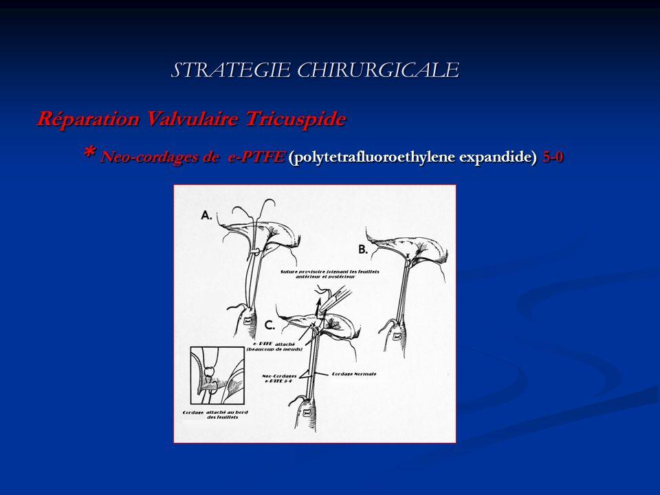 STRATEGIE CHIRURGICALE * Annuloplastie avec anneau ouvert de CARPENTIER- EDWARDS A BC D E