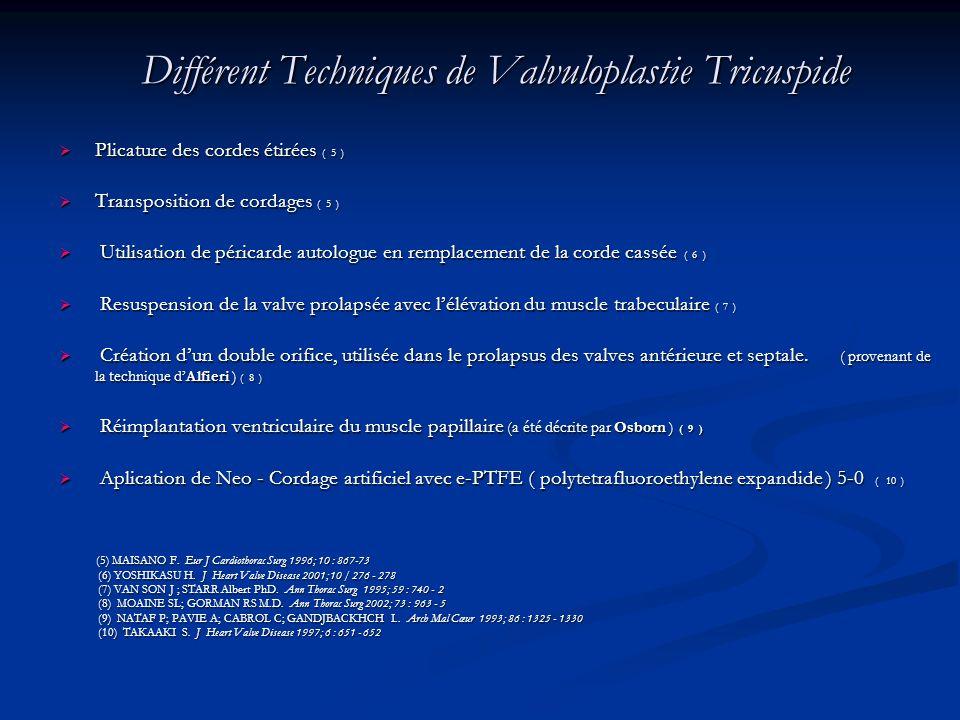 Différent Techniques de Valvuloplastie Tricuspide Différent Techniques de Valvuloplastie Tricuspide Plicature des cordes étirées ( 5 ) Plicature des c