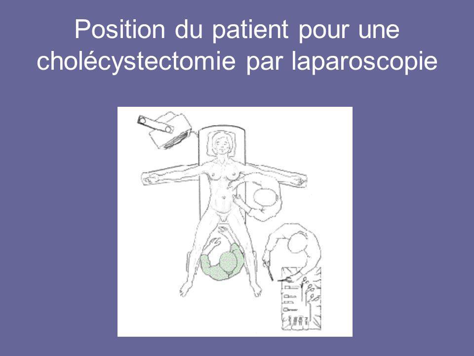 Position du patient pour une cholécystectomie par laparoscopie