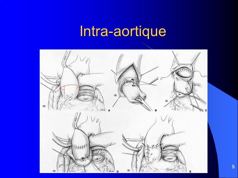 5 Intra-aortique