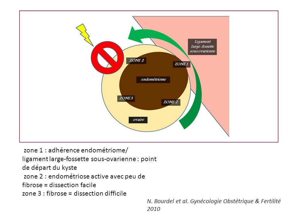 zone 1 : adhérence endométriome/ ligament large-fossette sous-ovarienne : point de départ du kyste zone 2 : endométriose active avec peu de fibrose =