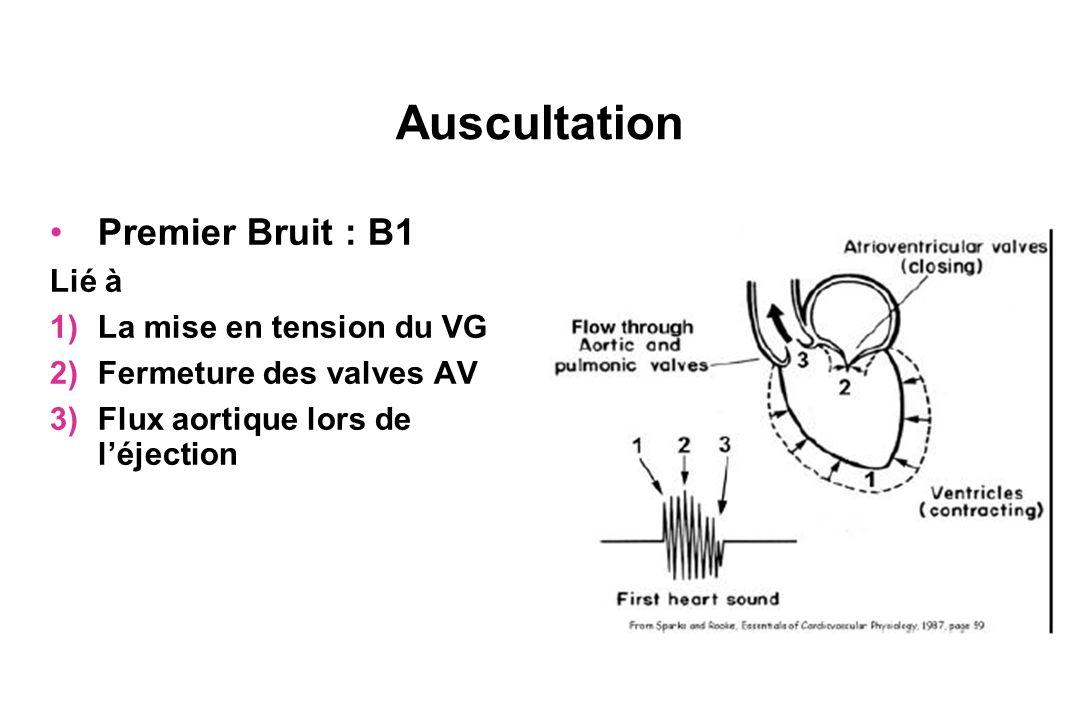 Auscultation Premier Bruit : B1 Lié à 1)La mise en tension du VG 2)Fermeture des valves AV 3)Flux aortique lors de léjection