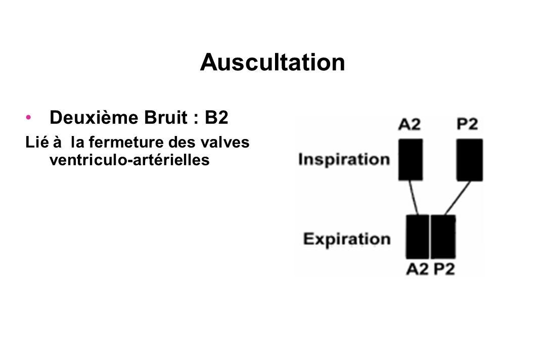 Auscultation Deuxième Bruit : B2 Lié à la fermeture des valves ventriculo-artérielles