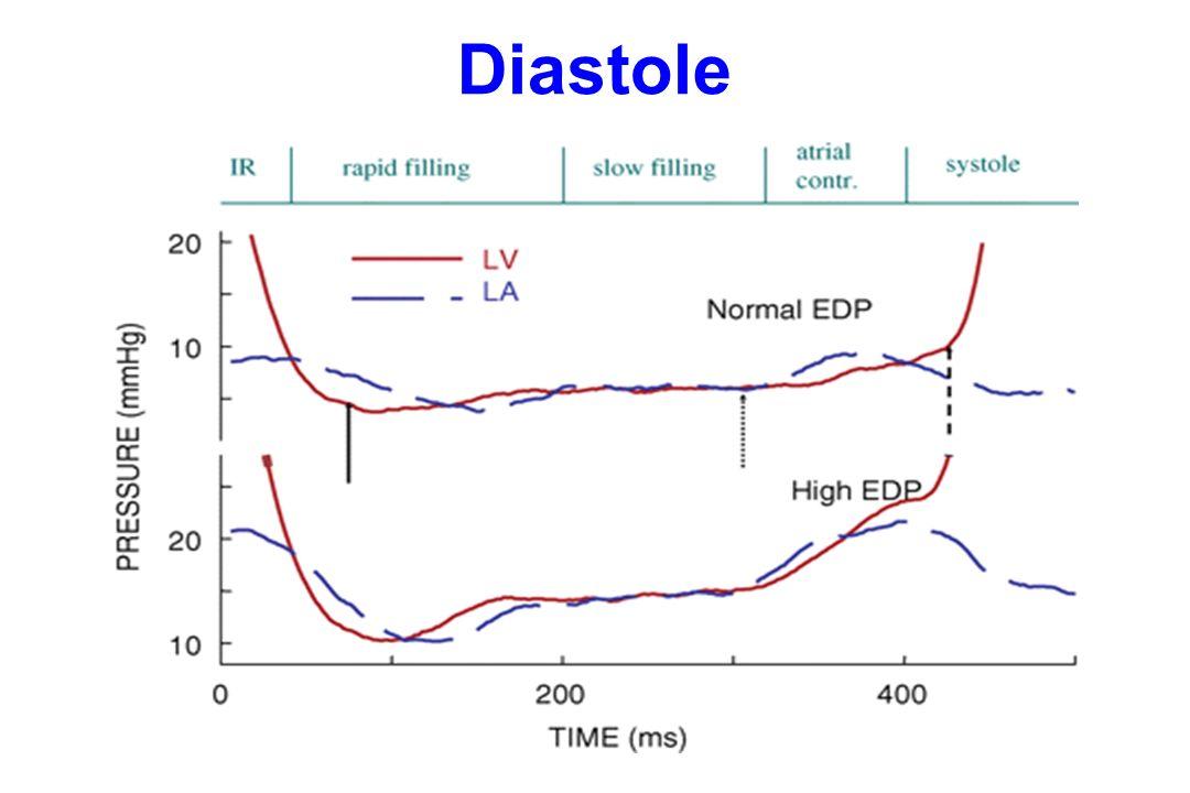 Diastole