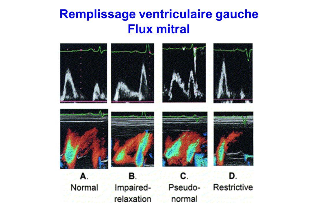 Remplissage ventriculaire gauche Flux mitral