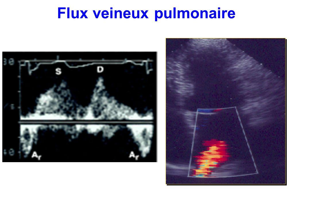 Flux veineux pulmonaire