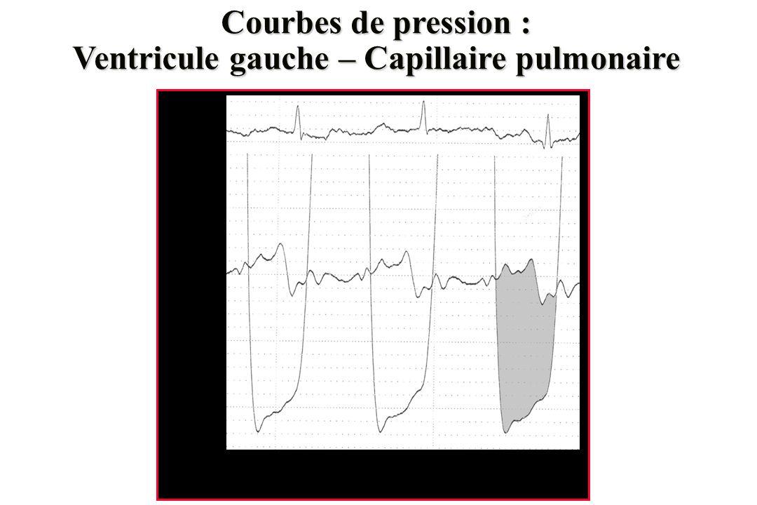 Courbes de pression : Ventricule gauche – Capillaire pulmonaire 0 10 20 30 40 mmHg
