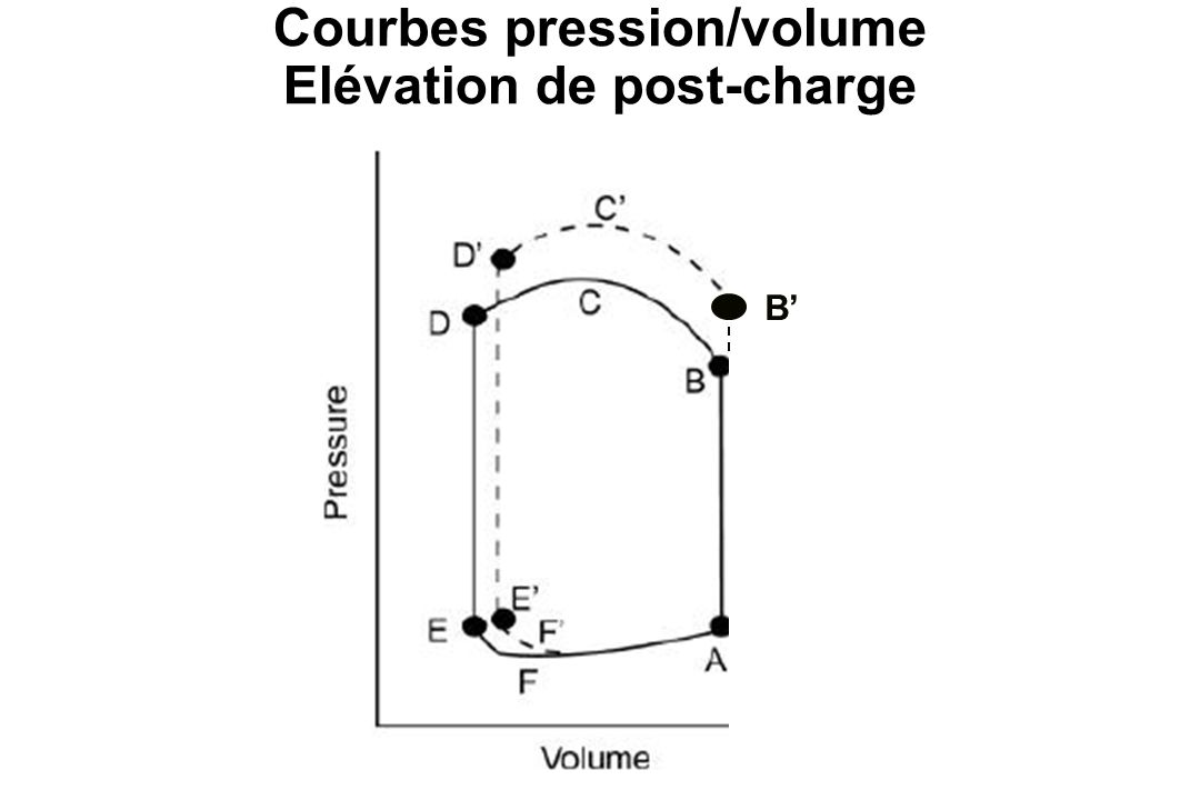 Courbes pression/volume Elévation de post-charge B