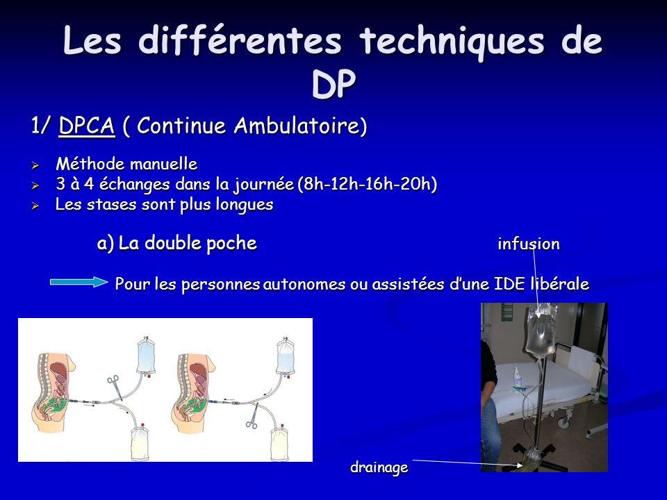 Les différentes techniques de DP 1/ DPCA ( Continue Ambulatoire ) Méthode manuelle Méthode manuelle 3 à 4 échanges dans la journée (8h-12h-16h-20h) 3