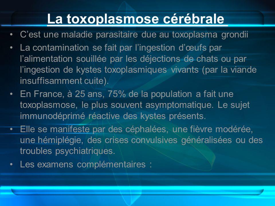 La toxoplasmose cérébrale Cest une maladie parasitaire due au toxoplasma grondii La contamination se fait par lingestion dœufs par lalimentation souil