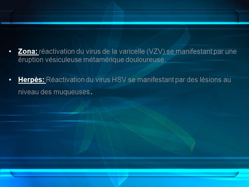 Zona: réactivation du virus de la varicelle (VZV) se manifestant par une éruption vésiculeuse métamérique douloureuse. Herpès: Réactivation du virus H