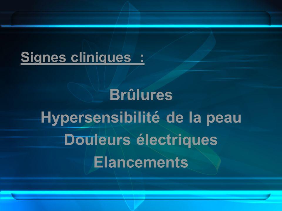 Signes cliniques : Brûlures Hypersensibilité de la peau Douleurs électriques Elancements