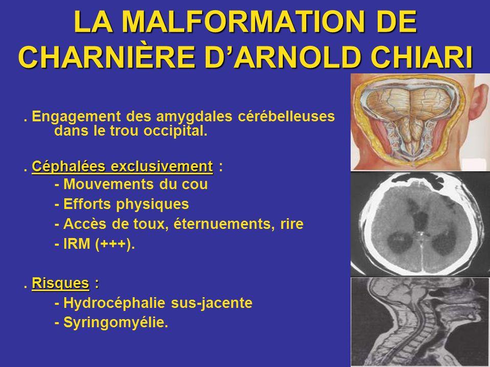 LA MALFORMATION DE CHARNIÈRE DARNOLD CHIARI. Engagement des amygdales cérébelleuses dans le trou occipital. Céphalées exclusivement. Céphalées exclusi
