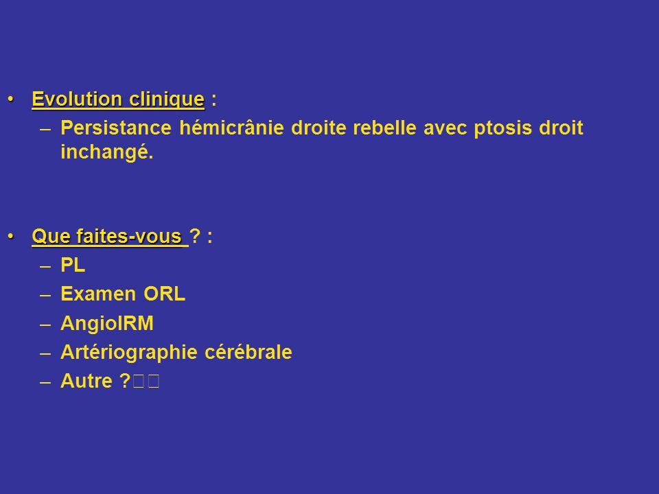Evolution cliniqueEvolution clinique : –Persistance hémicrânie droite rebelle avec ptosis droit inchangé. Que faites-vousQue faites-vous ? : –PL –Exam