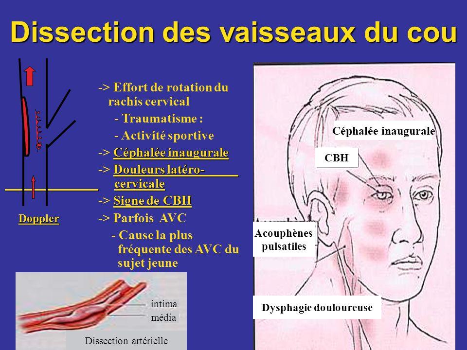 -> Effort de rotation du rachis cervical - Traumatisme : - Activité sportive Céphalée inaugurale -> Céphalée inaugurale Douleurs latéro- cervicale ->
