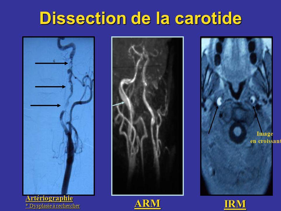 Artériographie * Dysplasie à rechercher IRM ARM Image en croissant Dissection de la carotide