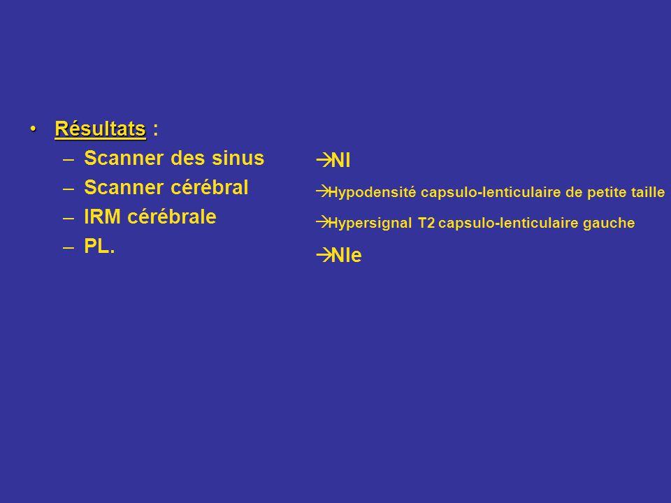 RésultatsRésultats : –Scanner des sinus –Scanner cérébral –IRM cérébrale –PL. Nl Hypodensité capsulo-lenticulaire de petite taille Hypersignal T2 caps