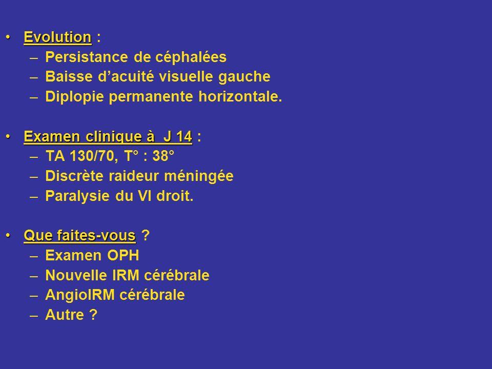 EvolutionEvolution : –Persistance de céphalées –Baisse dacuité visuelle gauche –Diplopie permanente horizontale. Examen clinique à J 14Examen clinique