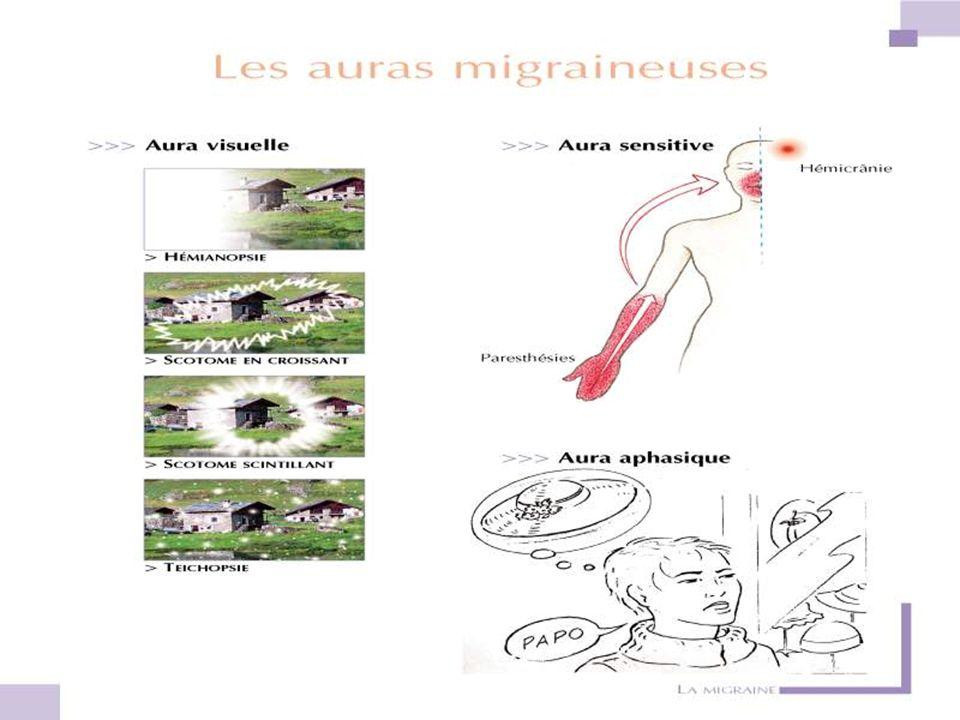 CEPHALEES PAROXYSTIQUES 1- CEPHALEES PAROXYSTIQUES - Migraine * - AVF - Névralgie du V - Névralgie dArnold CEPHALEES PERMANENTES 2- CEPHALEES PERMANENTES - Céphalée de tension - Céphalée Tumorale