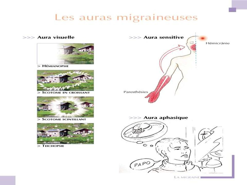 RésultatsRésultats : –Examen OPH –Scanner des sinus –Scanner cérébral –IRM cérébrale. Nl Nle