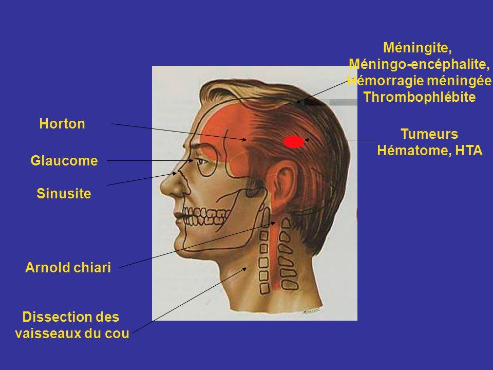 Glaucome Sinusite Tumeurs Hématome, HTA Dissection des vaisseaux du cou Méningite, Méningo-encéphalite, Hémorragie méningée Thrombophlébite Arnold chi