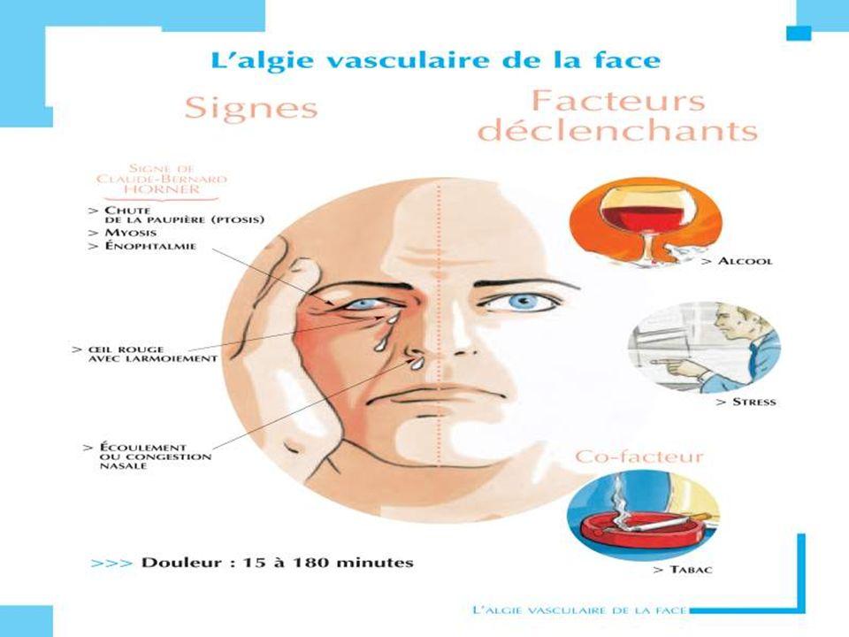 Céphalalgique connuCéphalalgique connu : –Céphalée inhabituelle Type Intensité Durée –Signes daccompagnement –Signes généraux (fièvre, AEG).
