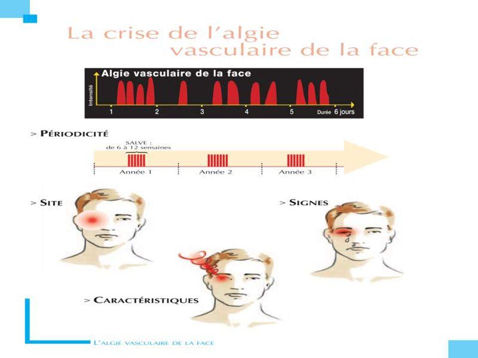 -> Effort de rotation du rachis cervical - Traumatisme : - Activité sportive Céphalée inaugurale -> Céphalée inaugurale Douleurs latéro- cervicale -> Douleurs latéro- cervicale Signe de CBH -> Signe de CBH -> Parfois AVC - Cause la plus fréquente des AVC du sujet jeune Zones douloureuses Myosis Douleurs Dissection artérielle Acouphènes Ptosis Céphalée inaugurale CBH Acouphènes pulsatiles Dysphagie douloureuse Doppler intima média Dissection artérielle