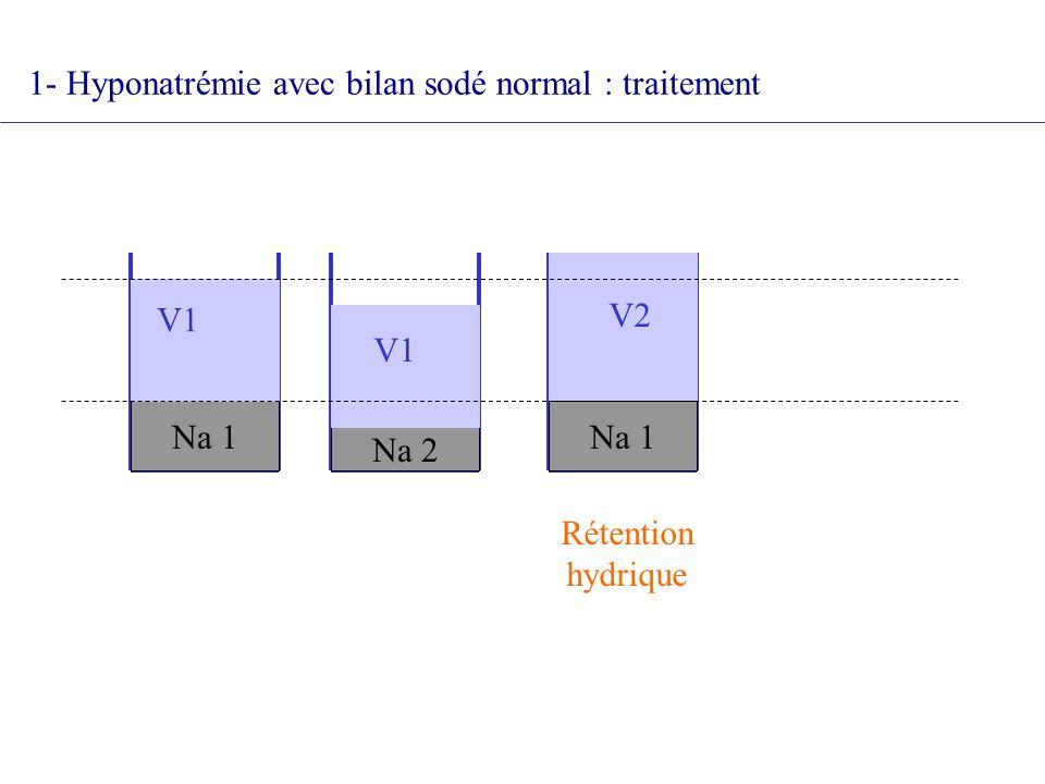 Na 1 Na 2 Na 1 V1 V2 V1 Rétention hydrique 1- Hyponatrémie avec bilan sodé normal : traitement