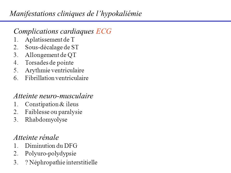 Manifestations cliniques de lhypokaliémie Complications cardiaques ECG 1.Aplatissement de T 2.Sous-décalage de ST 3.Allongement de QT 4.Torsades de po