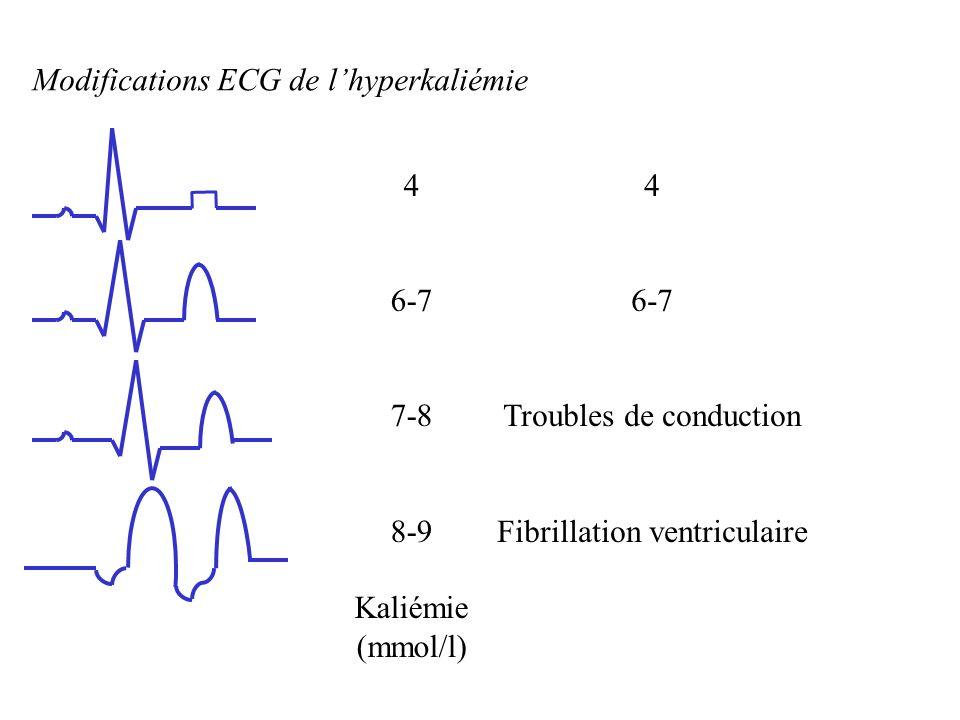 Modifications ECG de lhyperkaliémie 4 6-7 7-8 8-9 Kaliémie (mmol/l) 4 6-7 Troubles de conduction Fibrillation ventriculaire