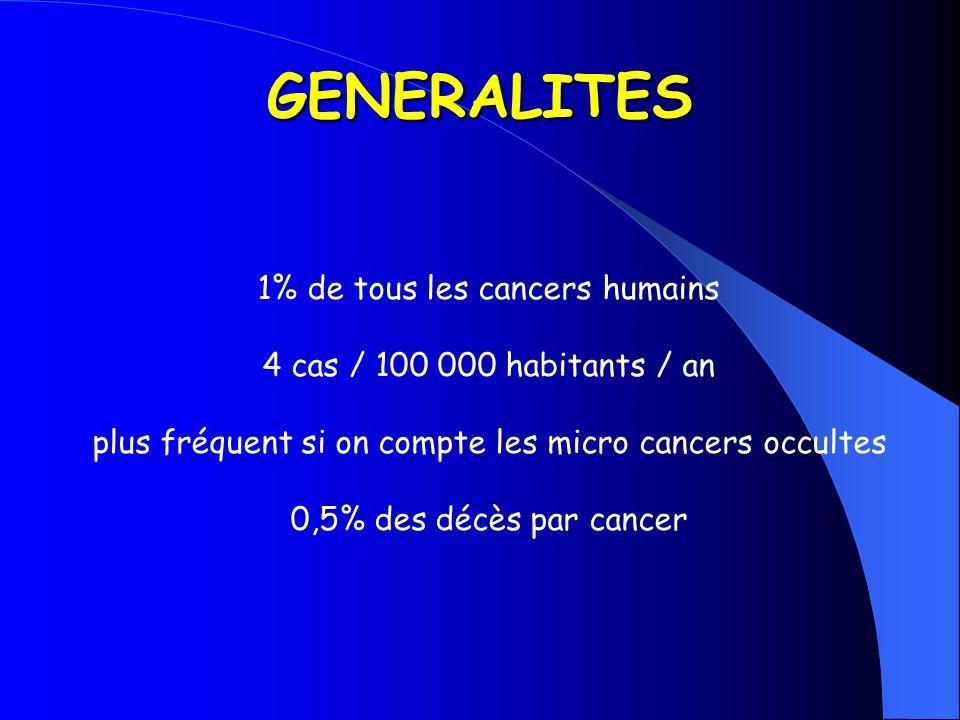 GENERALITES 1% de tous les cancers humains 4 cas / 100 000 habitants / an plus fréquent si on compte les micro cancers occultes 0,5% des décès par can