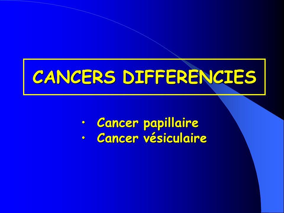 HISTOLOGIE Cancer thyroïdien épithélial non épithélial cellules cellules C vésiculaires lymphome sarcome métastase (…) cancer médullaire différenciation + cancer papillaire +/- cancer vésiculaire - cancer anaplasique