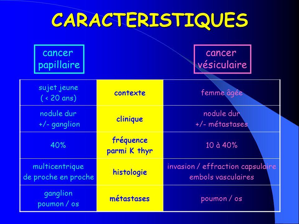 CARACTERISTIQUES sujet jeune ( < 20 ans) contextefemme âgée nodule dur +/- ganglion clinique nodule dur +/- métastases 40% fréquence parmi K thyr 10 à