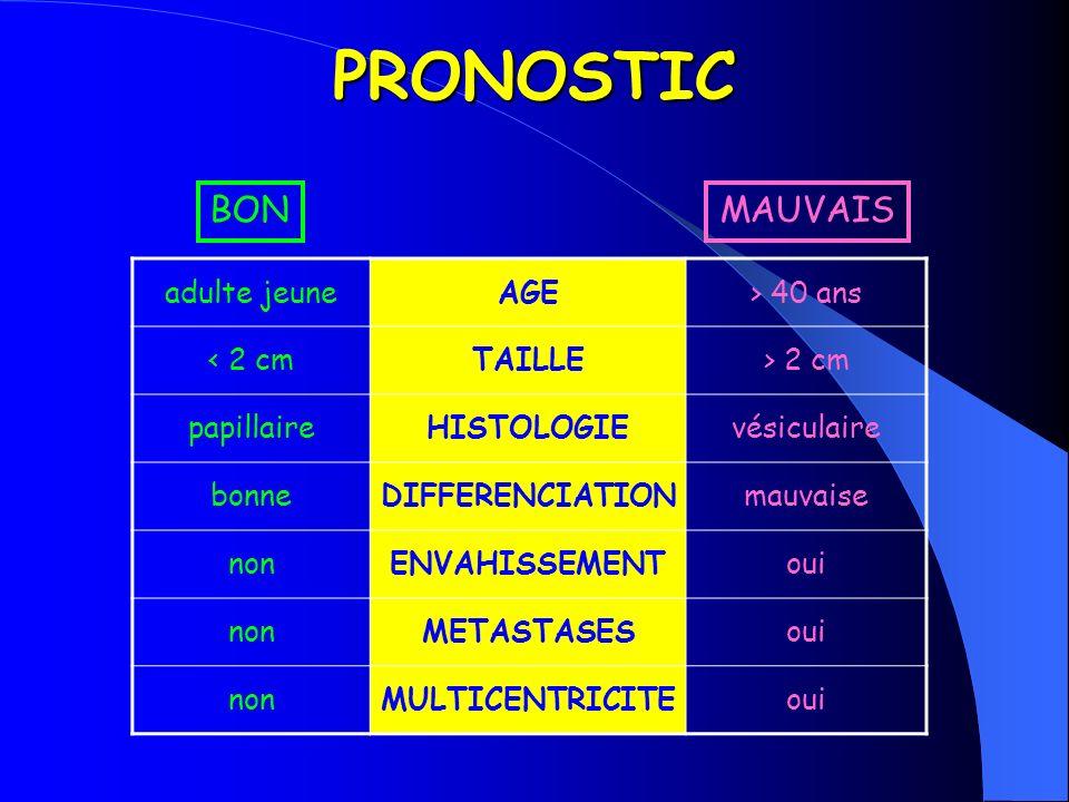 CLINIQUE Révélation flushs, diarrhées (TCT) nodule ganglion(s) ou métastase(s) Evolution métastases ganglionnaires précoces métastases foie / poumon / os