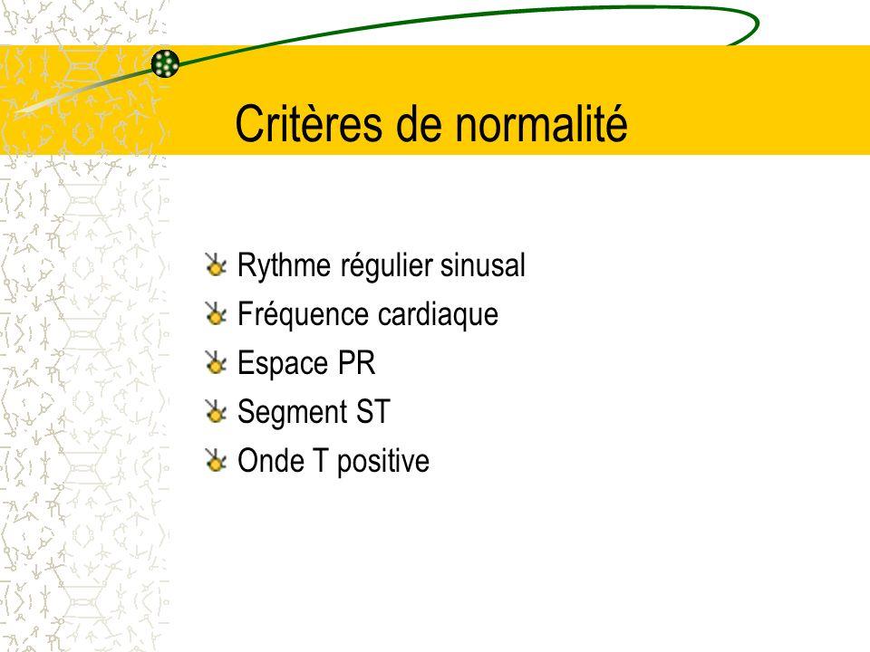Critères de normalité Rythme régulier sinusal Fréquence cardiaque Espace PR Segment ST Onde T positive