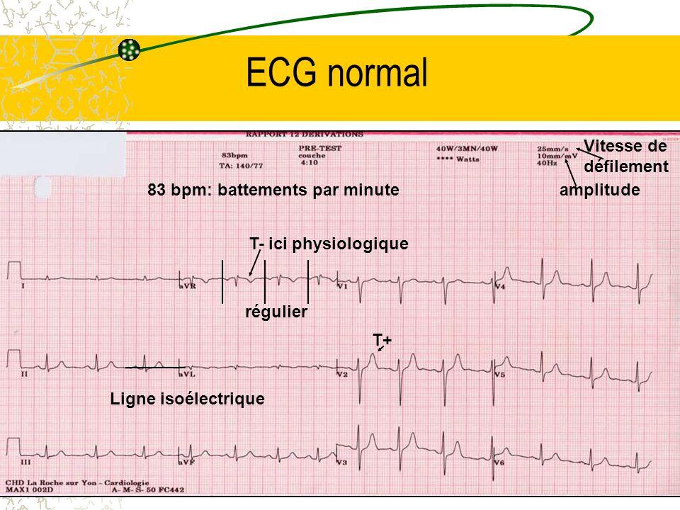 ECG normal Ligne isoélectrique 83 bpm: battements par minute régulier T+ T- ici physiologique Vitesse de défilement amplitude