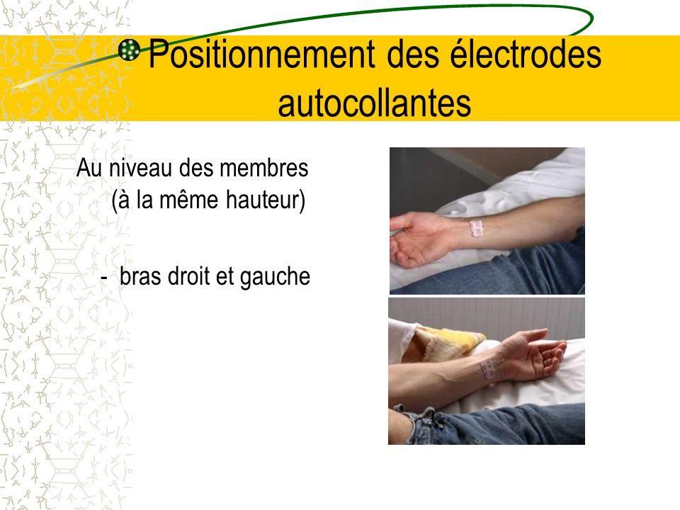 Positionnement des électrodes autocollantes jambes droite et gauche (principalement au niveau des chevilles)