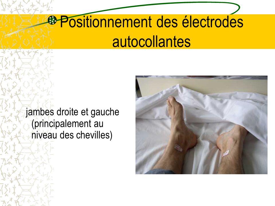 Positionnement des électrodes autocollantes Sur le thorax V1 se positionne au 4ème espace intercostal, sur le bord droit du sternum Attention: ne pas confondre la première côte avec la clavicule