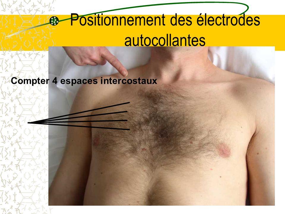 Positionnement des électrodes autocollantes Compter 4 espaces intercostaux