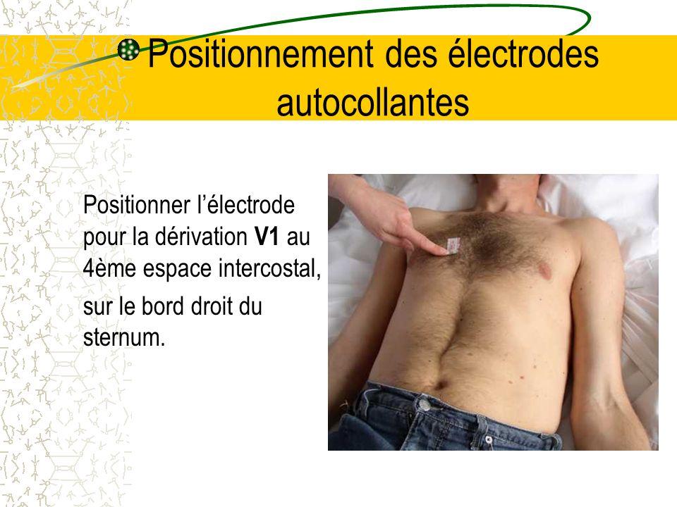 Positionnement des électrodes autocollantes Positionner lélectrode pour la dérivation V1 au 4ème espace intercostal, sur le bord droit du sternum.