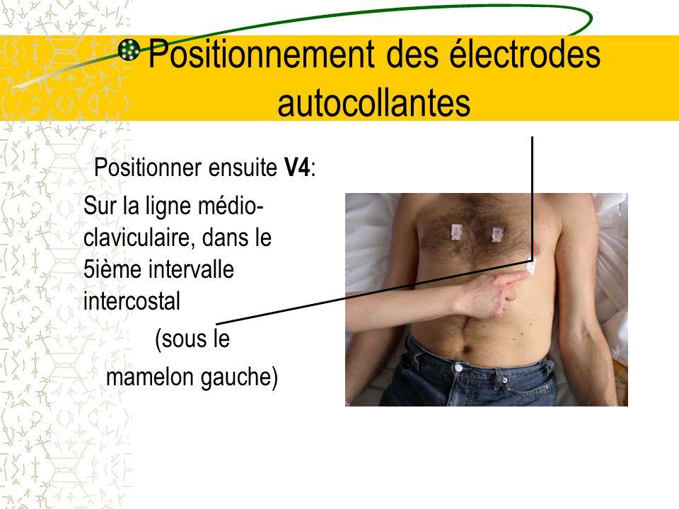 Positionnement des électrodes autocollantes Positionner ensuite V4 : Sur la ligne médio- claviculaire, dans le 5ième intervalle intercostal (sous le m