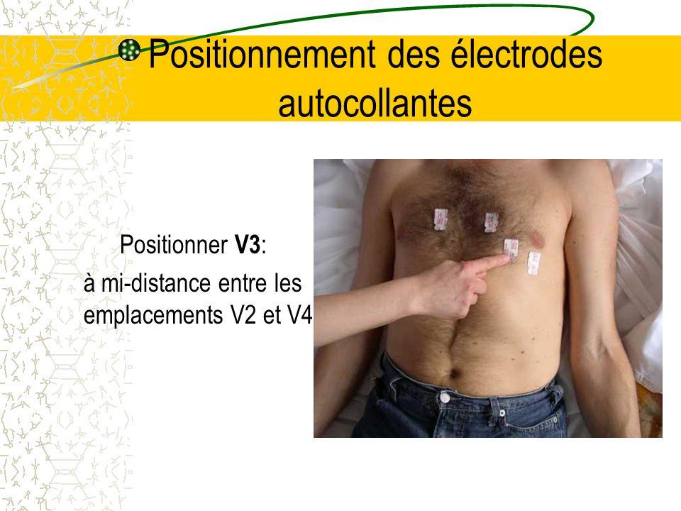 Positionnement des électrodes autocollantes Positionner V3 : à mi-distance entre les emplacements V2 et V4