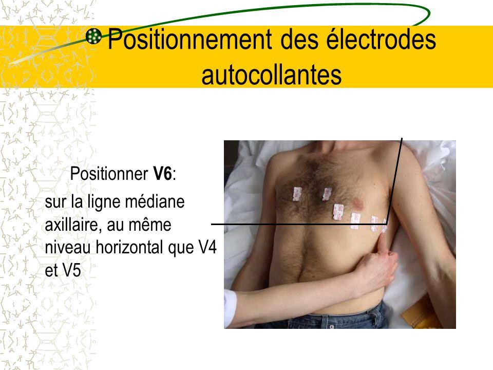 Positionnement des électrodes autocollantes Positionner V6 : sur la ligne médiane axillaire, au même niveau horizontal que V4 et V5